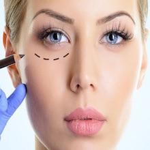 Blefaroplastia (cirugía de los párpados)