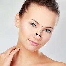 Rinoplastia (cirugía de la nariz)