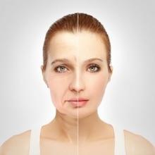 tratamiento de rejuvenecimiento facial murcia