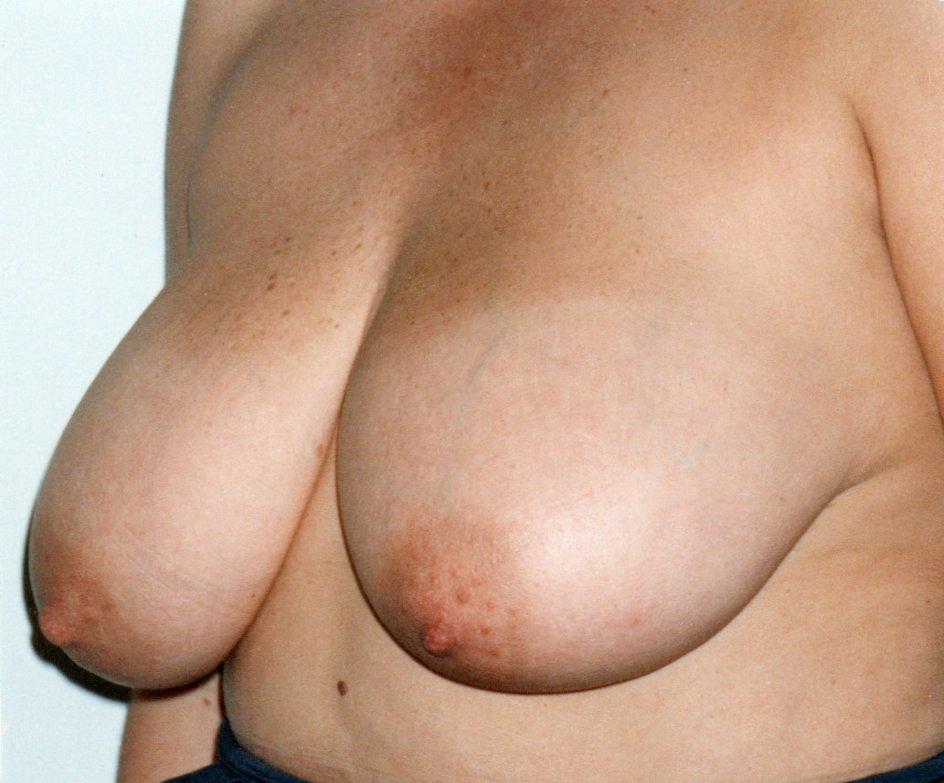 Before-Reducción de mamas