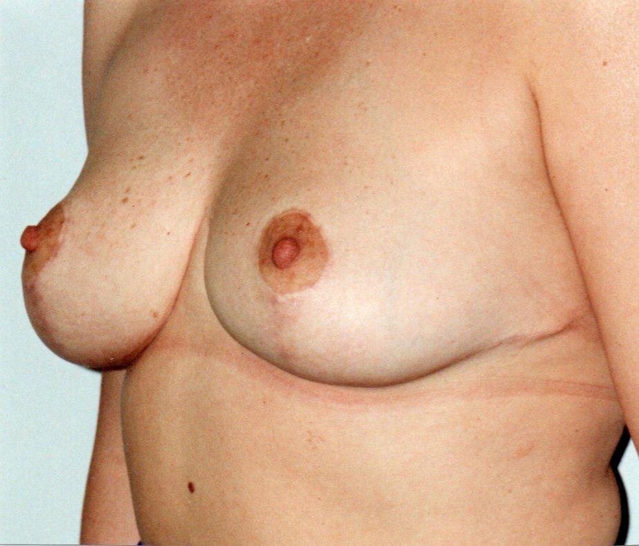 After-Reducción de mamas