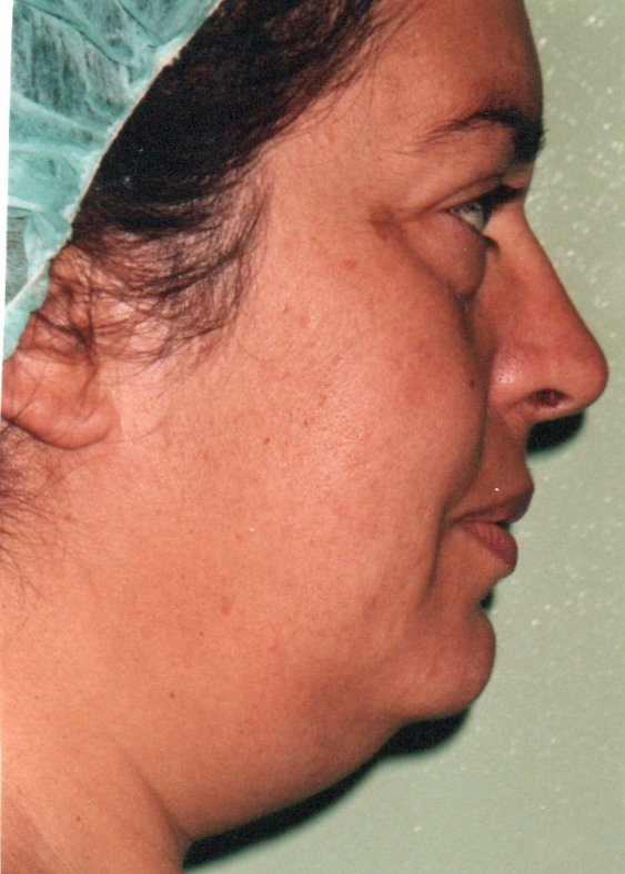 Before-Blefaroplastia