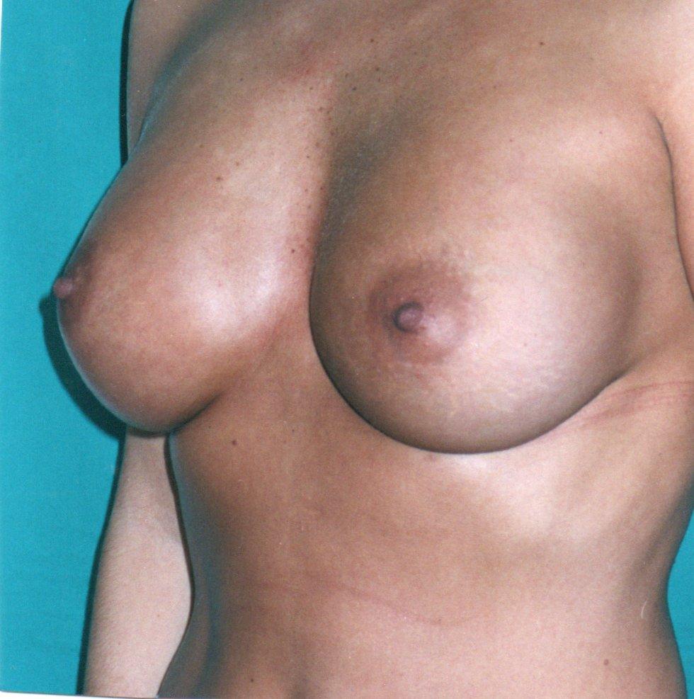After-Aumento de mamas
