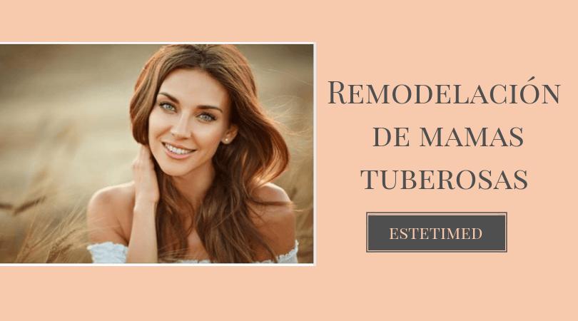 remodelacion mamas tuberosas